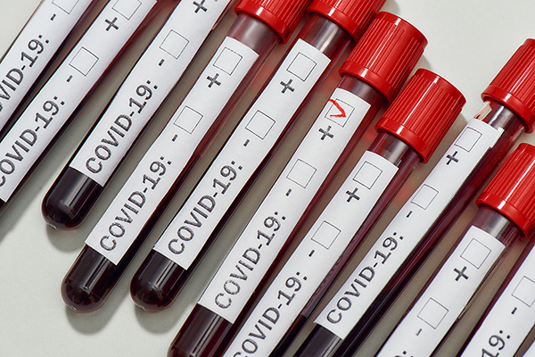 Laboratories Raise the Bar for COVID-19 Testing, but U.S. Test Numbers Still Lag